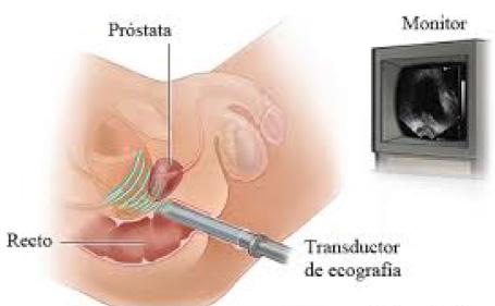Urología Salamanca Ecografía