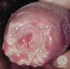 Qué son las enfermedades o infecciones de transmisión sexual - Clínica Urológica. Urología Salamanca. Dr. Miguel Ángel García - Urólogo Salamanca