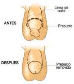 Fimosis - Clínica Urológica. Urología Salamanca. Dr. Miguel Ángel García - Urólogo Salamanca
