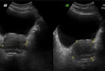 Hiperplasia Benigna de próstata - Clínica Urológica. Urología Salamanca. Dr. Miguel Ángel García - Urólogo Salamanca