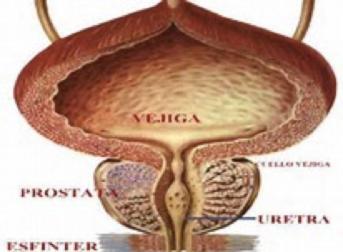 Incontinencia Urinaria Masculina - Clínica Urológica. Urología Salamanca. Dr. Miguel Ángel García - Urólogo Salamanca