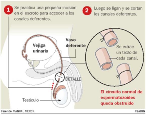 Vasectomía - Clínica Urológica. Urología Salamanca. Dr. Miguel Ángel García - Urólogo Salamanca