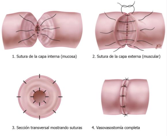 Vaso-vasostomía - Clínica Urológica. Urología Salamanca. Dr. Miguel Ángel García - Urólogo Salamanca